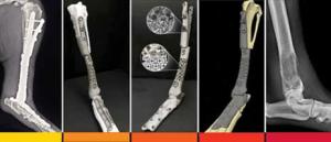 מימין לשמאל: צילום רנטגן של אזור הגידול, יצירת מודל תלת-ממדי, ייצור העצם המלאכותית, השתלתה וצילום רנטגן נוסף