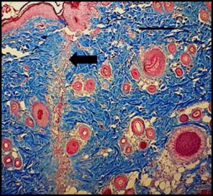 צילום של הרקמה שבועיים לאחר ההדבקה. החץ השחור מצביע על החתך הדק והמצומצם המעיד על יעילות הטיפול