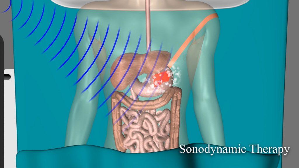 המחשת טיפול ממוקד בגידול ממאיר באמצעות ננו-חלקיקים קרמיים-פולימריים. החלקיקים מצטברים בגידול באופן סלקטיבי לאחר הזרקה, ומוקרנים בצורה ממוקדת בתדרים על קוליים (גלי אולטראסאונד).