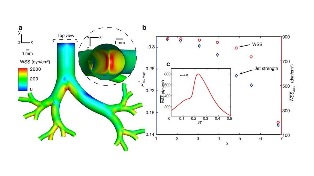 סימולציית מחשב של הנשמת המודל; באדום – אזורים הצפויים להיפגע