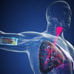 Graphic rendition on skin adhesive sensors for Tuberculosis from Technion Israel Detection