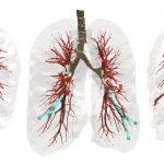 באיור: שלושה מבטים על ביופסיה של הריאה בטכנולוגיה החדשה. המחטים (בירוק) נעות אל המטרה תוך עקיפה של מכשולים אנטומיים ובהם כלי דם גדולים (באדום), רקמת הריאה (באפור) והסמפונות (בחום) – הצינורות המחברים את קנה הנשימה לריאות.