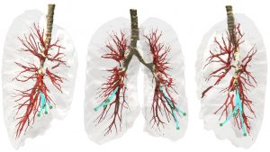 Three views of the lung environment